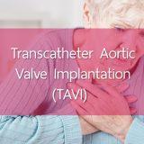 Dr Panayiotides Yiannis - transcatheter aortic valve implantation - TAVI