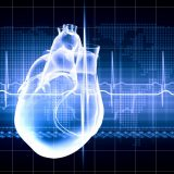 Virtual image of human heart with cardiogram - Increased myocardial infarction
