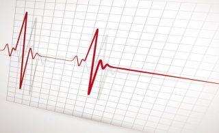 Δρ Παναγιωτιδης - Ηλεκτροκαρδιογράφημα
