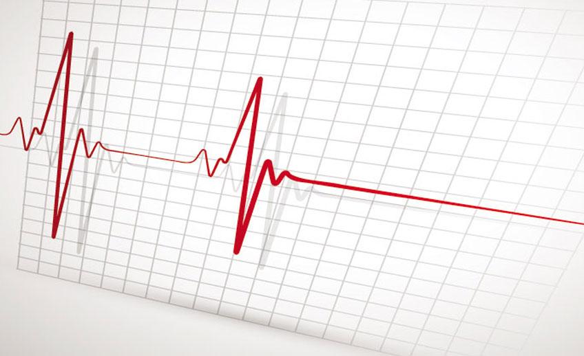 -Παναγιωτιδης-Ηλεκτροκαρδιογράφημα.jpg