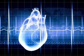 Virtual image of human heart with cardiogram - Increased myocardial infarction